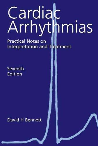 Download Cardiac Arrhythmias